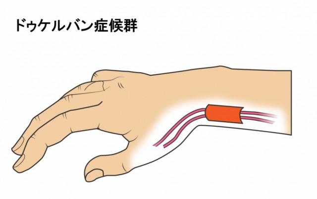 腱と腱鞘のイラスト