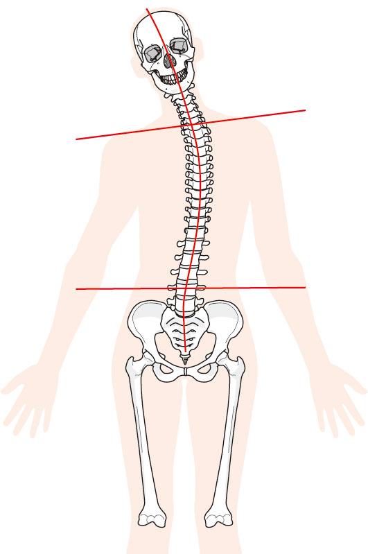 腰痛への当院のアプローチは?